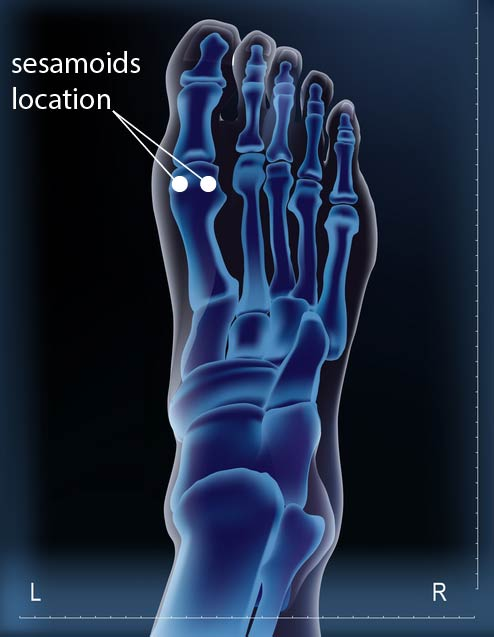 sesamoids-foot-rehabilitation-anatomy-function